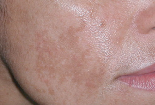 ... rough wrinkled itching liver spots 2 sepia offincinalis yellow spots