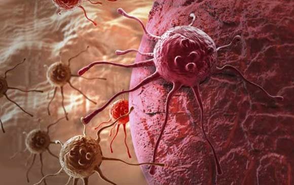 desarrollan-revolucionario-implante-atrae-celulas-cancer