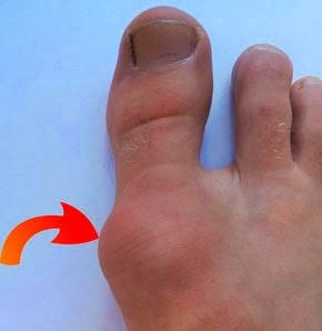 Косточки на больших пальцах ног