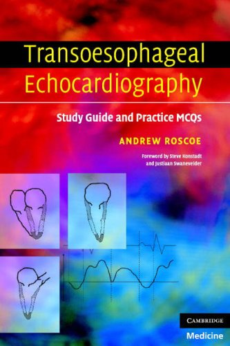 Transoesophageal Echocardiography: Study Guide and Practice MCQs  PDF