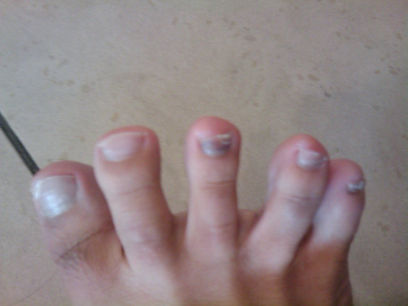 Unhealthy Nails On the unhealthy nailsUnhealthy Toenails