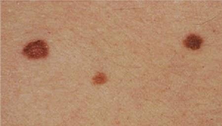 Hur fort växer malignt melanom
