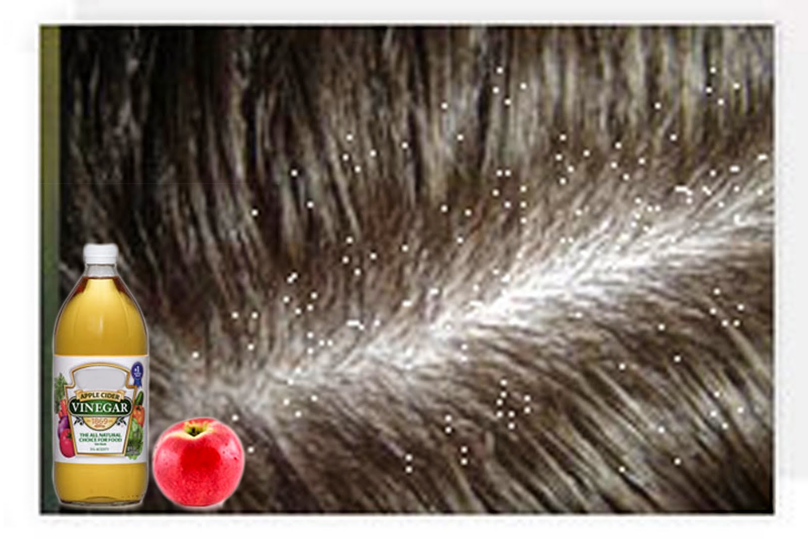 Causes remove dandruff massage dead cells home remedies hair combat the dryness Hair care Reasons Control Reduce
