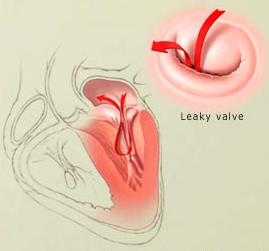sekat jantung dan inilah yang dikatakan jantung bocor. Jantung bocor ...
