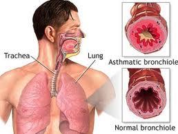 obat tradisional herbal penyakit bronchitis atau bronkitis
