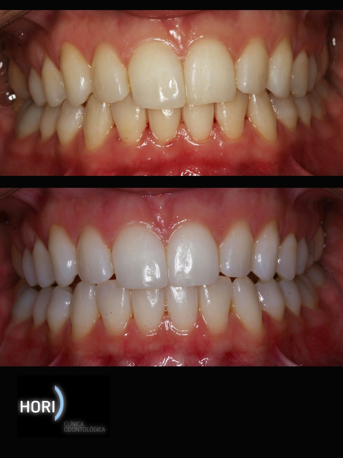 Dentista Guarulhos - Dra.Yeska Braga: Clareamento Dental