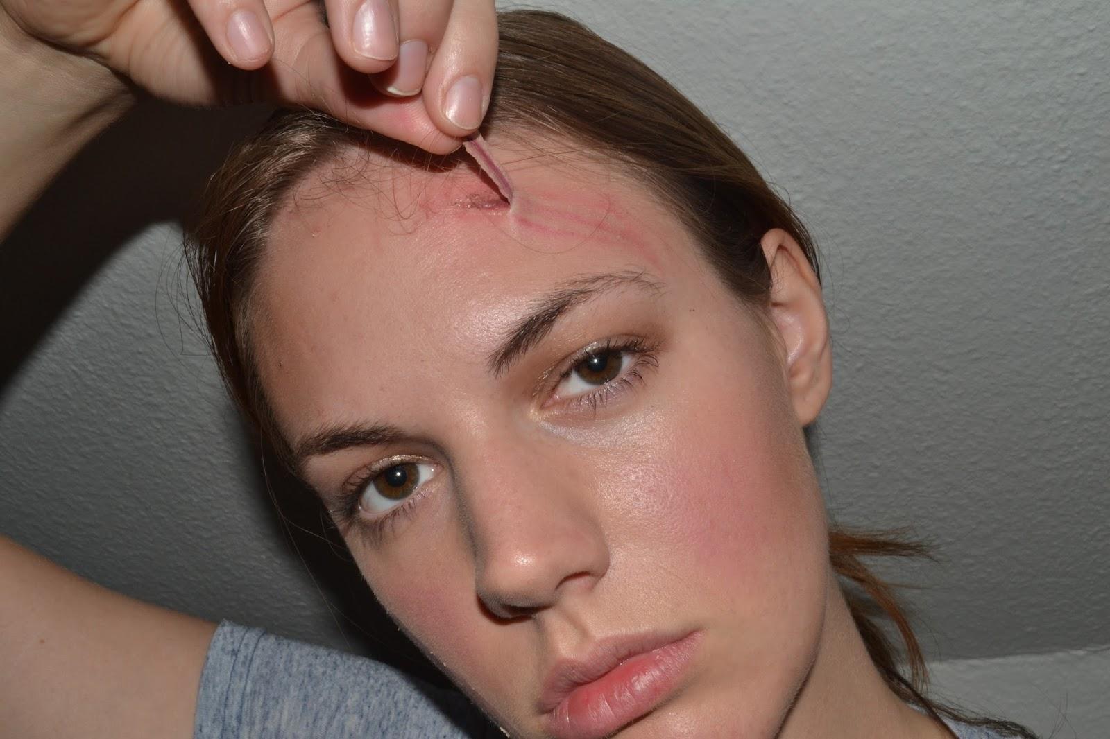hvordan fjerner man ar i ansigtet