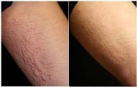 HEALTH SECOND: How To Remove Stretch Marks On Legs