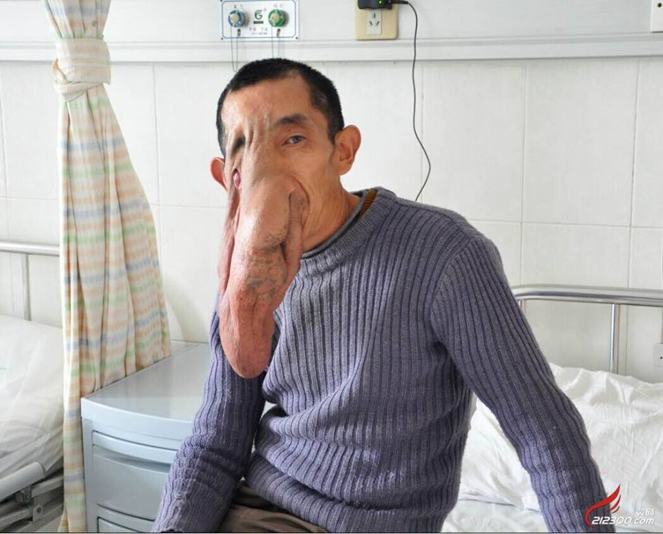 ... Meet The Man With A Massive Tumor On His Face Like That Of An Elephant