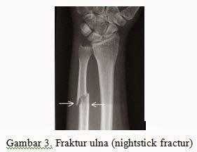 Fraktur ulna (nightstick fractur)