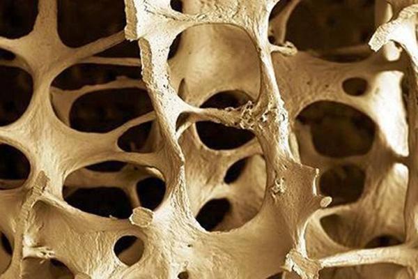 osteoporosis pria