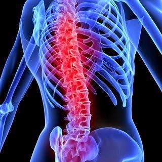 http://2.bp.blogspot.com/-cWtFYQrDnxc/U7zznXq6b7I/AAAAAAAACLM/vZq1NTVDFYo/s1600/spinal+cord+injury.jpg
