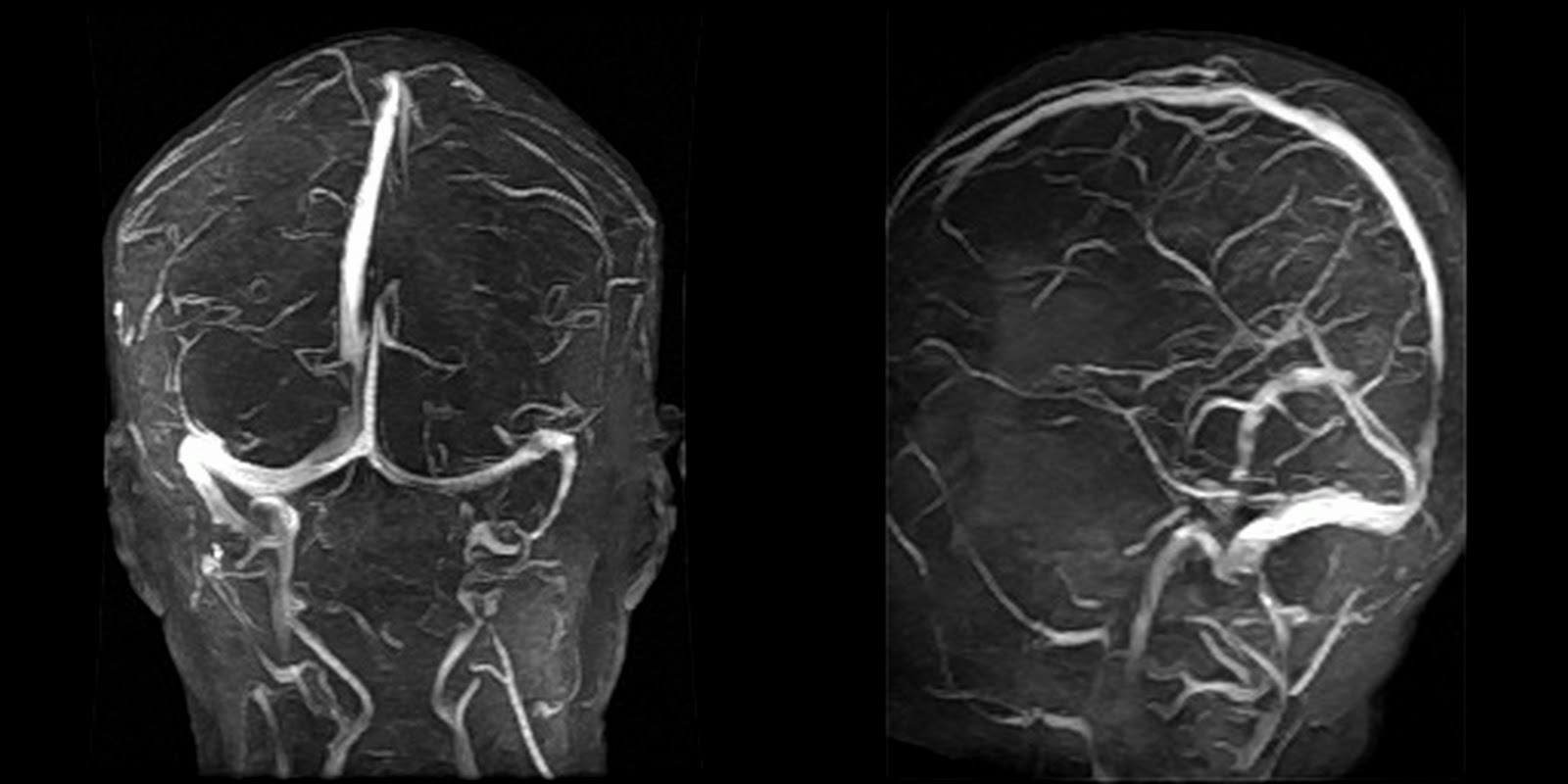 Dr Balaji Anvekar\'s Neuroradiology Cases: Isolated cortical vein ...