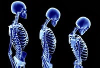 Healthy Bones Tips: Know the Signs & Symptoms of Osteoporosis