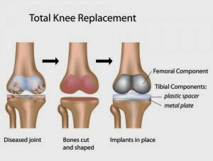 Knee replacement cost in India