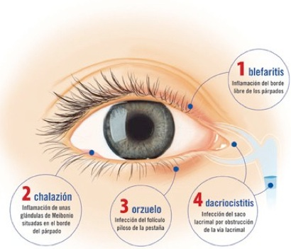 chalazion treatment steroid injection