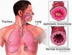 Cara Tradisional Sembuhkan Penyakit Asma
