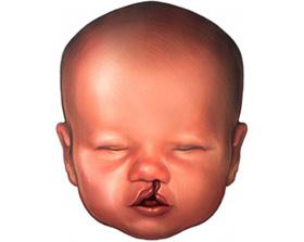 Síndrome de Patau - Trissomia do cromossomo 13
