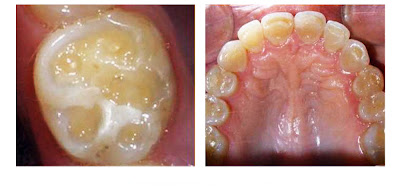erosion desgaste acido dental bebidas isotonicas deportivas