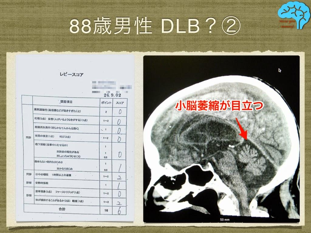 レビースコア6点 小脳も萎縮