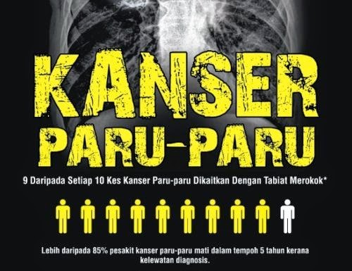 kanser paru-paru dikaitkan dengan tabiat merokok