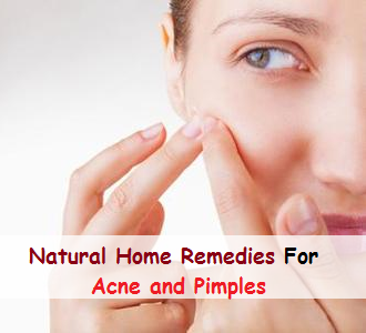 Natural Home Remedies for Acne and Pimples