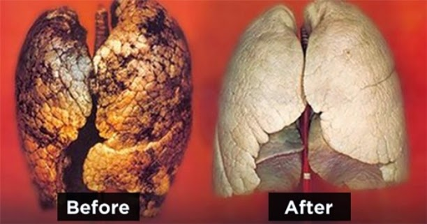 Clean-Your-Lungs-From-Smoking