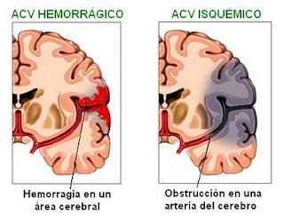 Fisiopatología de la isquemia cerebral