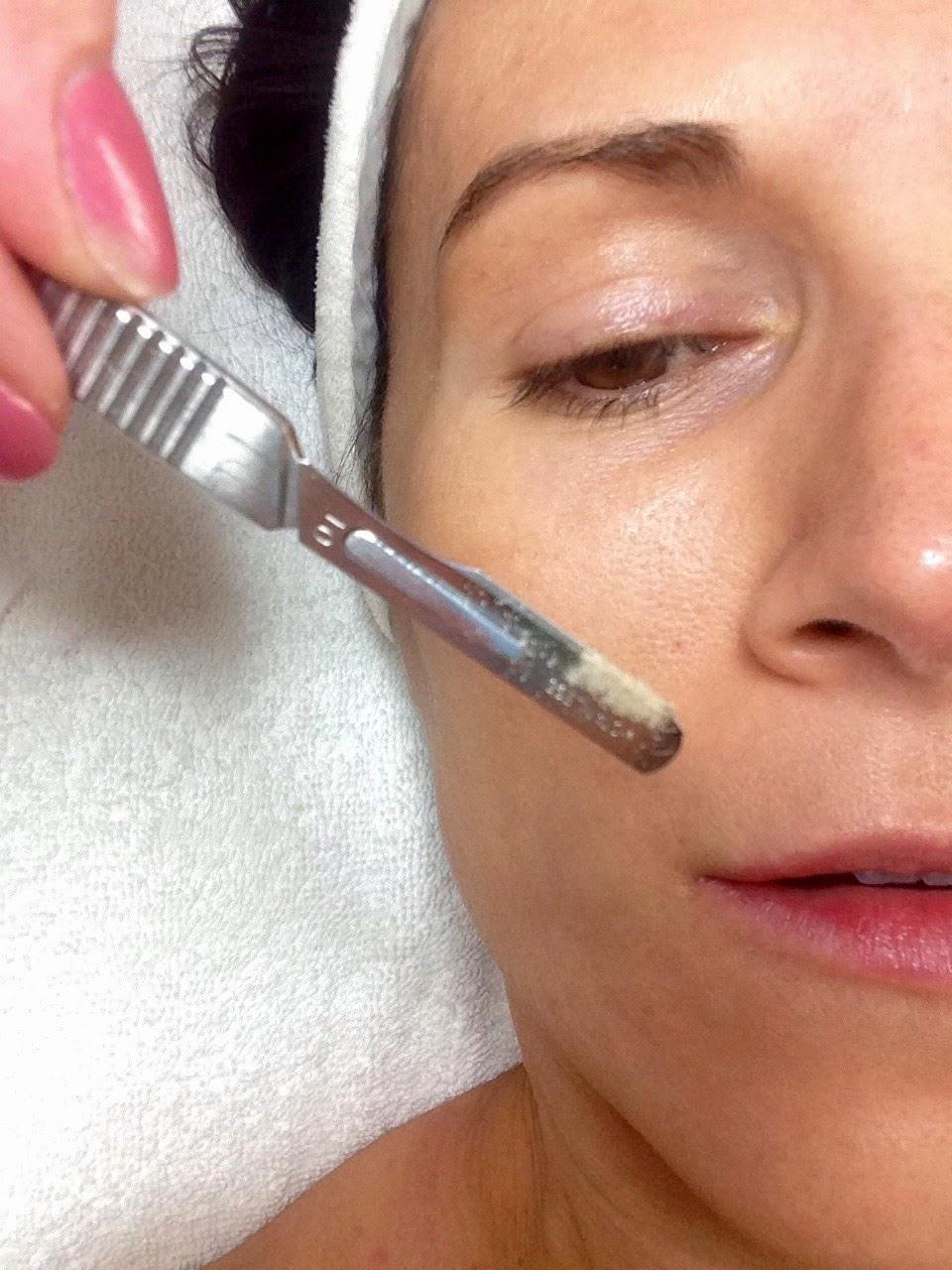 Dermaplaning, dermaplaning facials, dermaplaning reviews, dermaplaning costs, dermaplaning  side effects