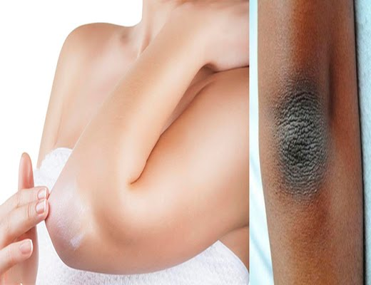 prima masaje piel oscura