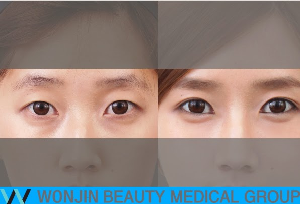 eye_plastic_surgery_specialized_hospital_wonjin