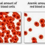 Know the Signs & Symptoms of Anemia