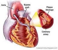Obat Tradisional Untuk Menyembuhkan Jantung Bocor