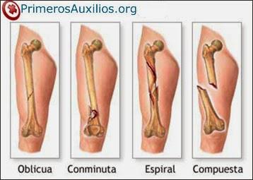 Primeros auxilios en fracturas esguinces y luxaciones