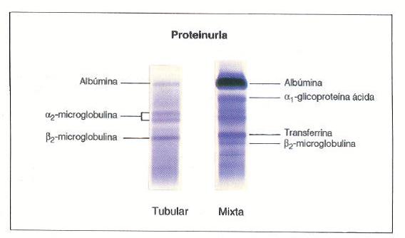 Club de Nefrología: Proteinograma urinario