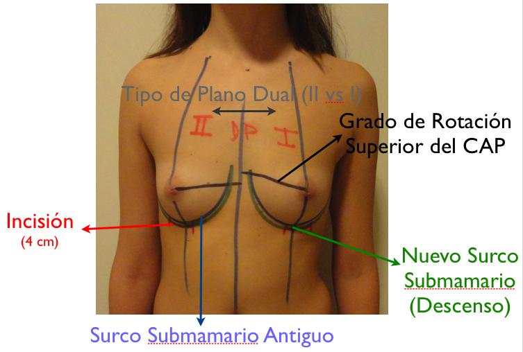 El medio para el aumento de las dimensiones del pecho