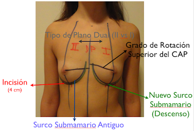aumento_pecho_mamas_mamoplastia_cirujano_plastico
