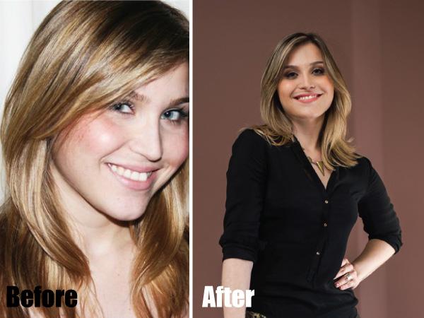 Antes e depois Lu ferreira do blog Chata de Galocha