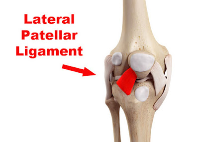 Lateral Patellar Ligament