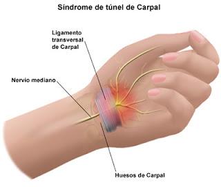 ¿Qué es el Síndrome del Túnel Carpiano?