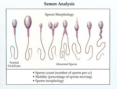Test for Success: The Semen Analysis Attain Fertility