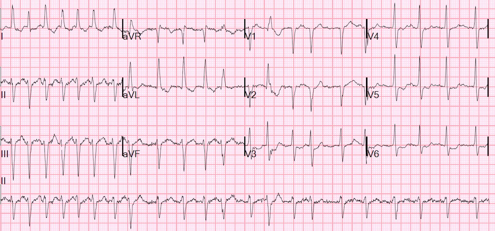 Atrial fibrillation ecg strip images 895