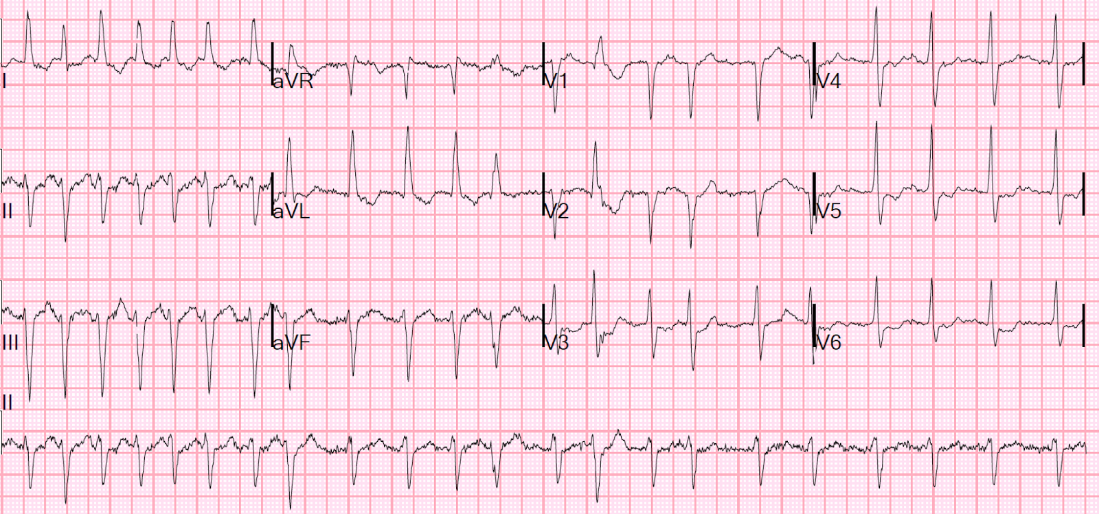 The ecg rhythm strip for atrial fibrillation Definition