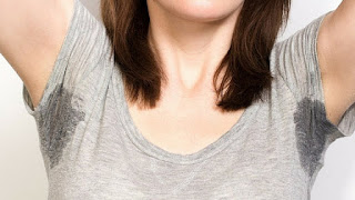 Hiperhidrosis Tratamiento