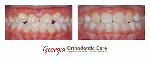 Phase I orthodontic treatment, early orthodontic treatment, cross bite, lawrenceville, norcross, duluth, dacula, sugar loaf, sugar hill, lilburn, snellville, grayson, buford, gwinnett, orthodontist, orthodontics, braces, orthodontic, Georgia, 30043