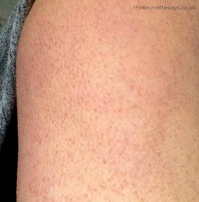 Chicken Skin, Keratosis Pilaris, KP, skincare