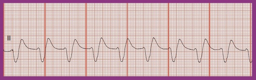 float nurse  ekg rhythm strip quiz 212