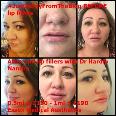 Lip Fillers By Dr Hardip Nandra