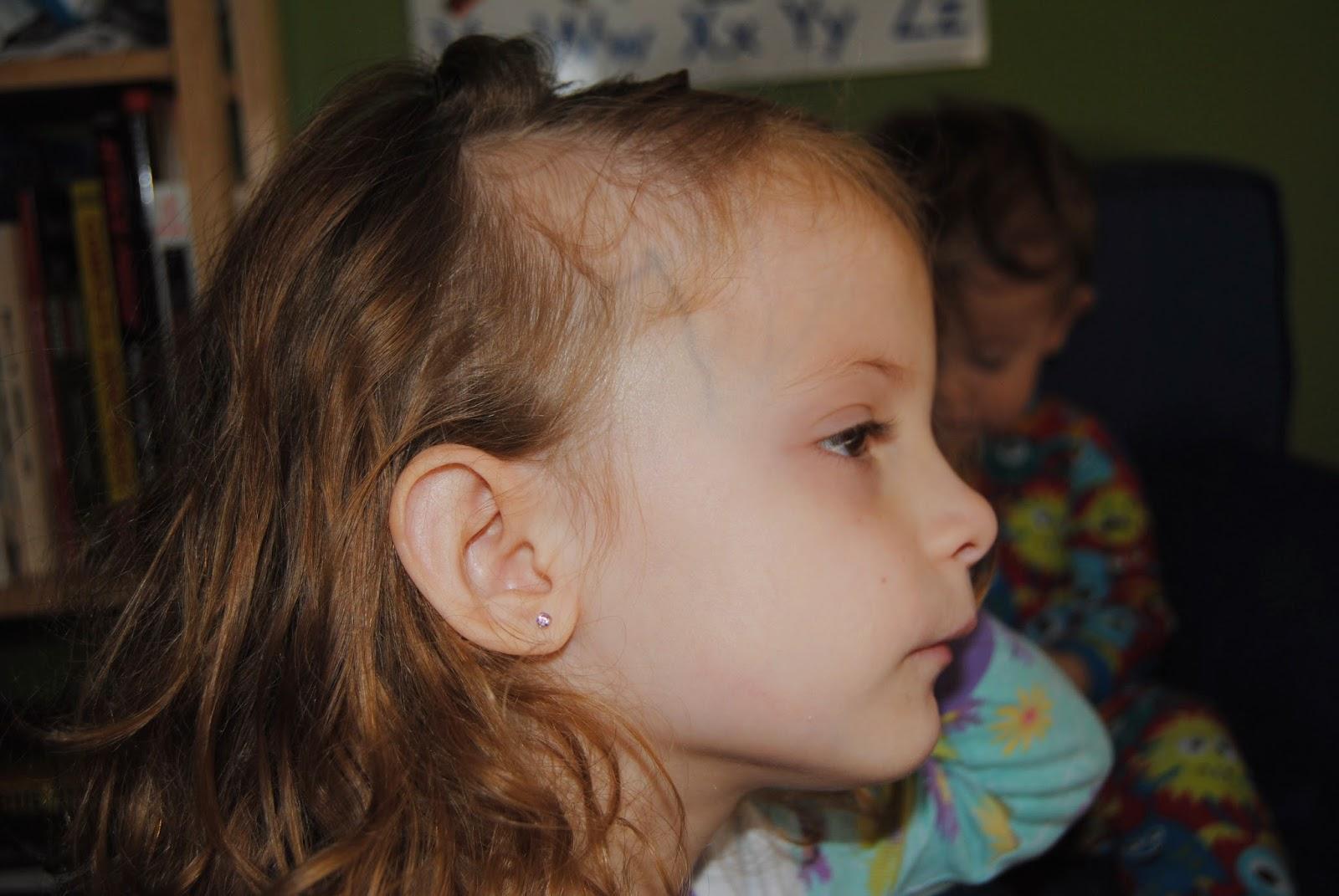 Почему жидкие волосы у ребенка