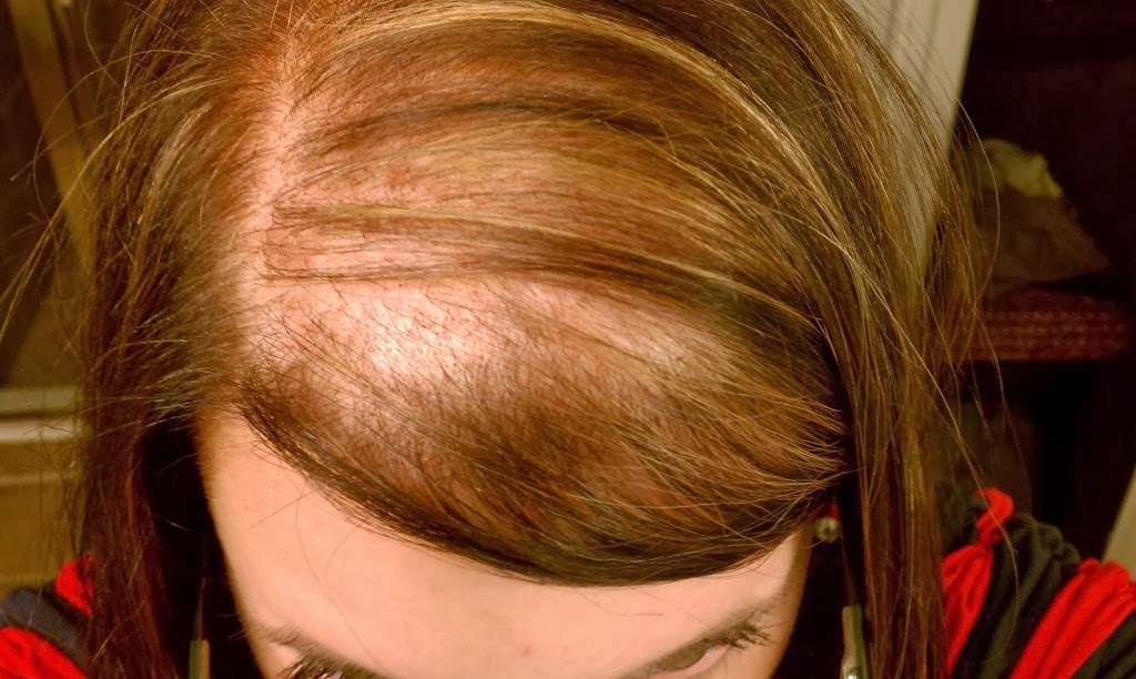 style female hair loss thinning alopecia